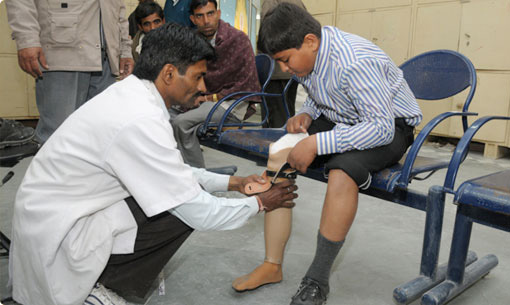 Jaipur Foot has changed the lives of over 1.8 mln people who lost limbs in landmine blasts, civil wars or accidents dr mehta BMVSS belo knee prosthesis above knee prosthesis artificial limbs run walk cycle